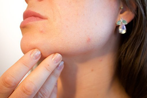 Why you have acne as an adult