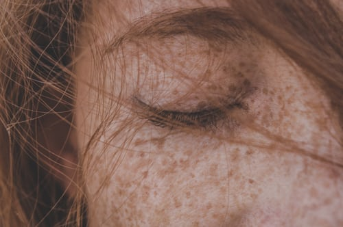 Dark skin spots - dermabrasion